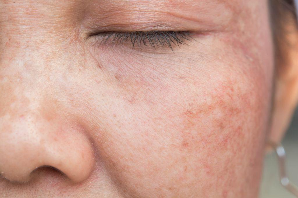 Przebarwienia skórne - co to jest i jak sobie z nimi radzić?
