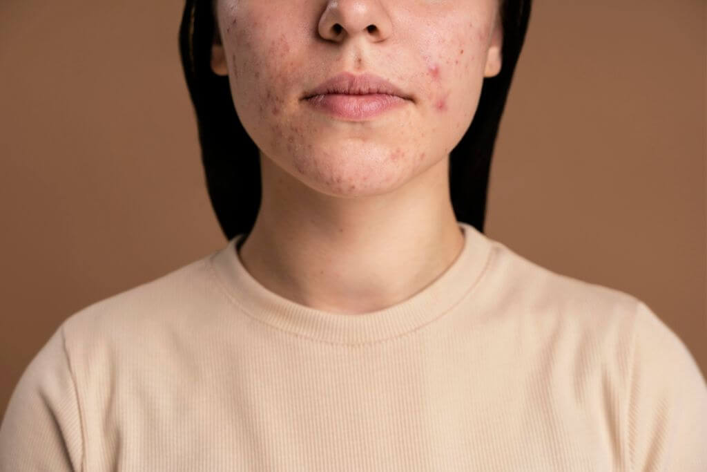 Charakterystyka cery trądzikowej