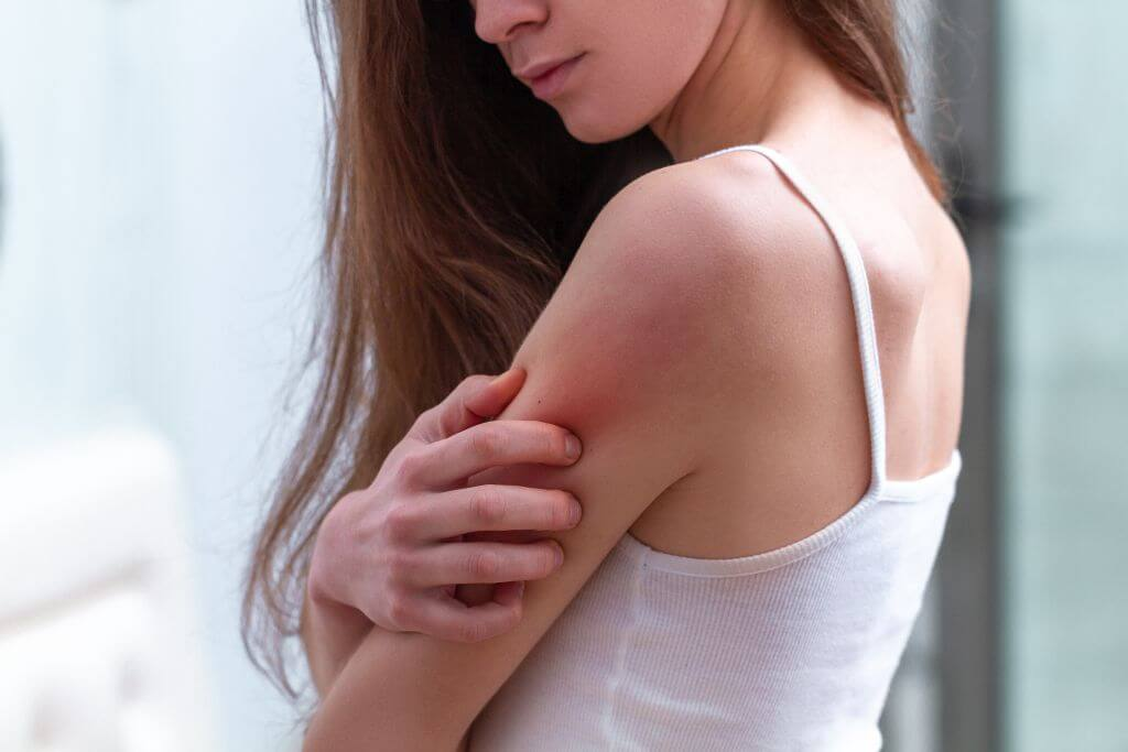 Charakterystyka suchej skóry